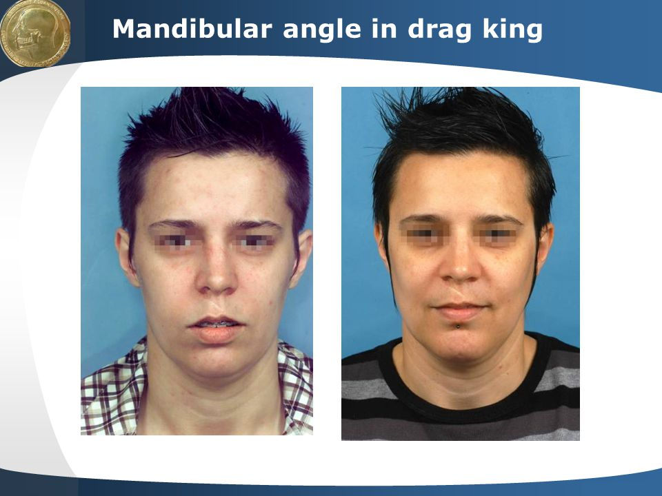 Your site here LOGO Mandibular angle in drag king