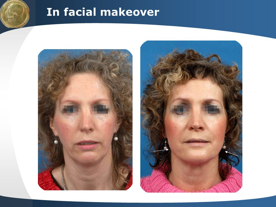 Your site here LOGO In facial makeover