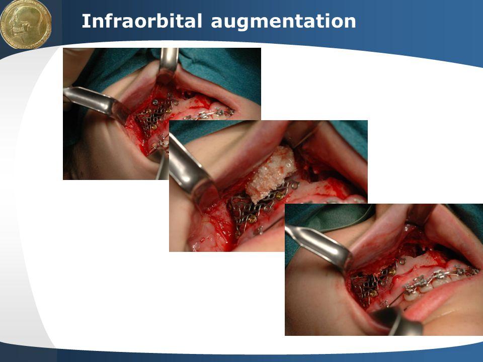 Your site here LOGO Infraorbital augmentation