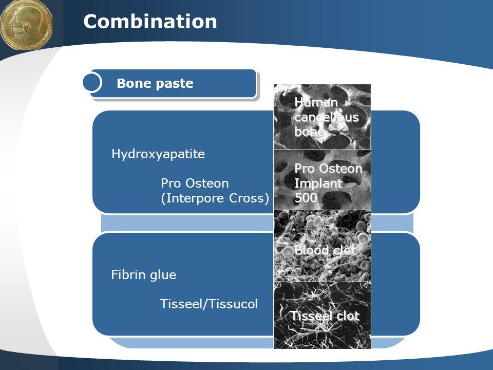 Your site here LOGO Combination Hydroxyapatite Pro Osteon (Interpore Cross) Fibrin glue Tisseel/Tissucol Bone paste Humancancellousbone Pro Osteon Imp