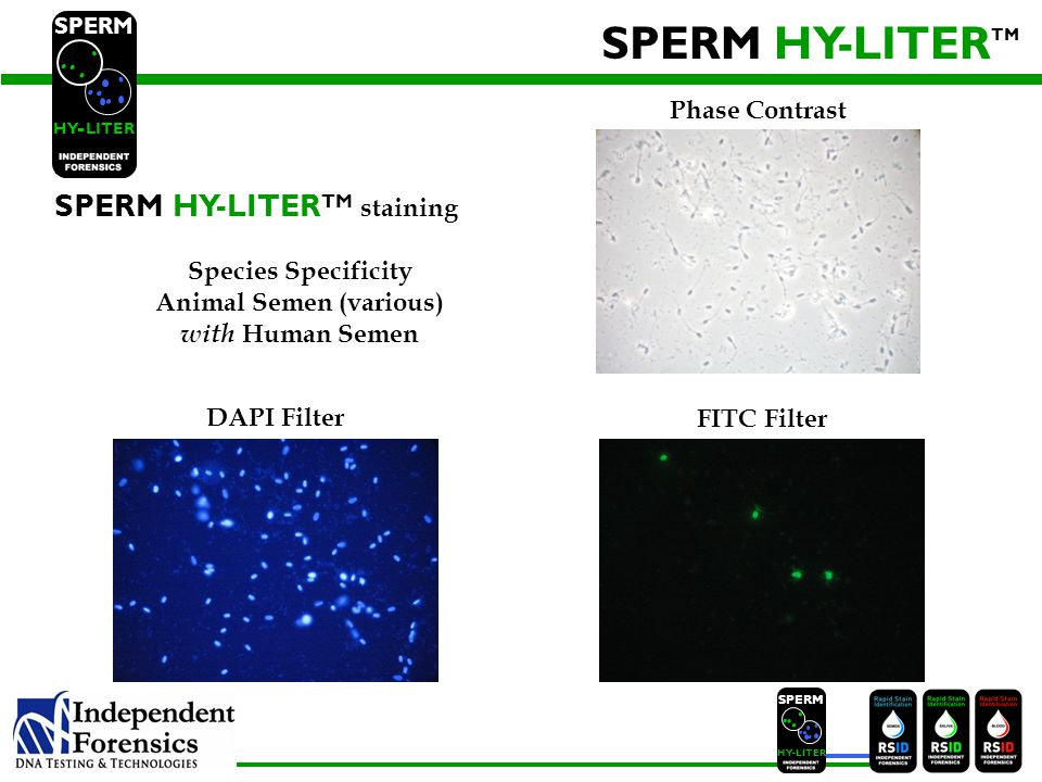 SPERM HYLITER SPERM HY-LITER TM SPERM HY LITER - First Positive Identification for Human Sperm First Specific Identification for Human Sperm Sensitivity down to a single sperm Fully Compatible with Automated Methods SPERM HY-LITER PLUS TM Scan slides at lower magnification: 40X