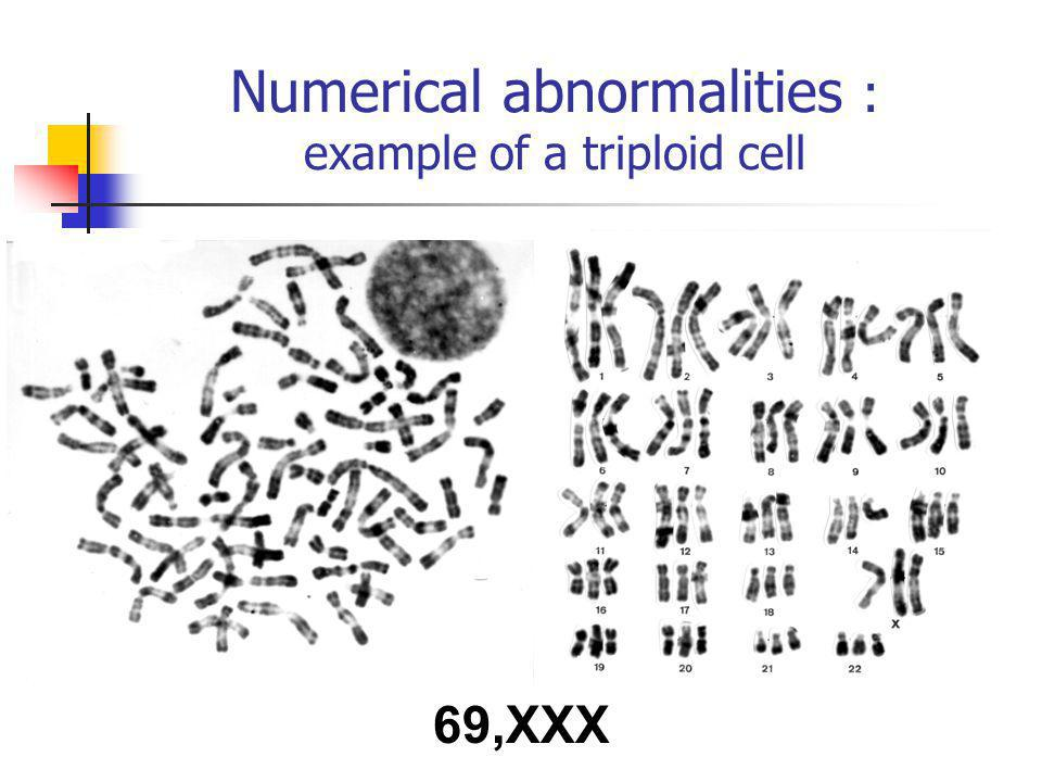 69,XXX Numerical abnormalities : example of a triploid cell