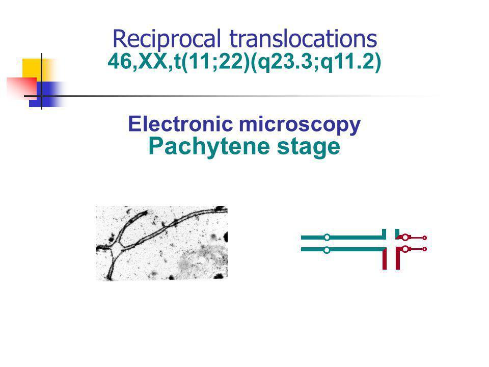 46,XX,t(11;22)(q23.3;q11.2) Electronic microscopy Pachytene stage