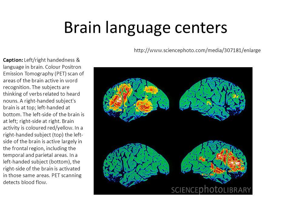 Brain language centers http://www.sciencephoto.com/media/307181/enlarge Caption: Left/right handedness & language in brain.