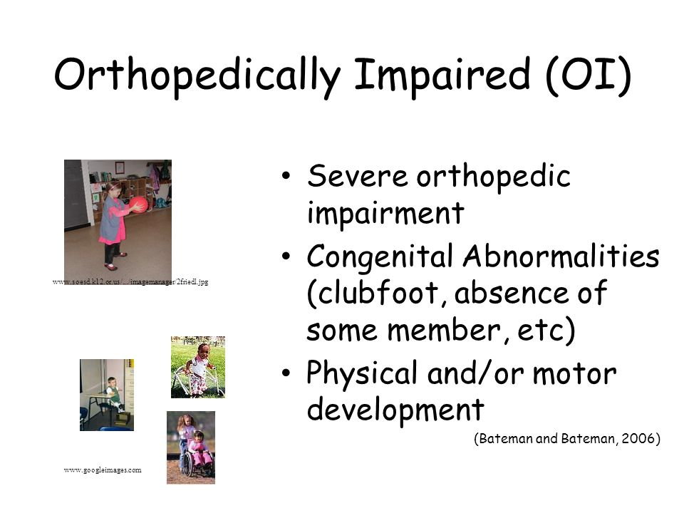Orthopedically Impaired (OI) Severe orthopedic impairment Congenital Abnormalities (clubfoot, absence of some member, etc) Physical and/or motor development (Bateman and Bateman, 2006) www.soesd.k12.or.us/.../imagemanager/2friedl.jpg www.googleimages.com
