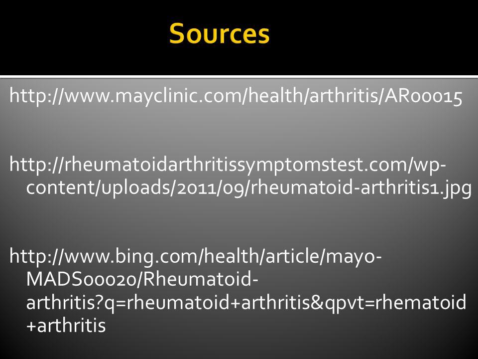 http://www.mayclinic.com/health/arthritis/AR00015 http://rheumatoidarthritissymptomstest.com/wp- content/uploads/2011/09/rheumatoid-arthritis1.jpg http://www.bing.com/health/article/mayo- MADS00020/Rheumatoid- arthritis q=rheumatoid+arthritis&qpvt=rhematoid +arthritis