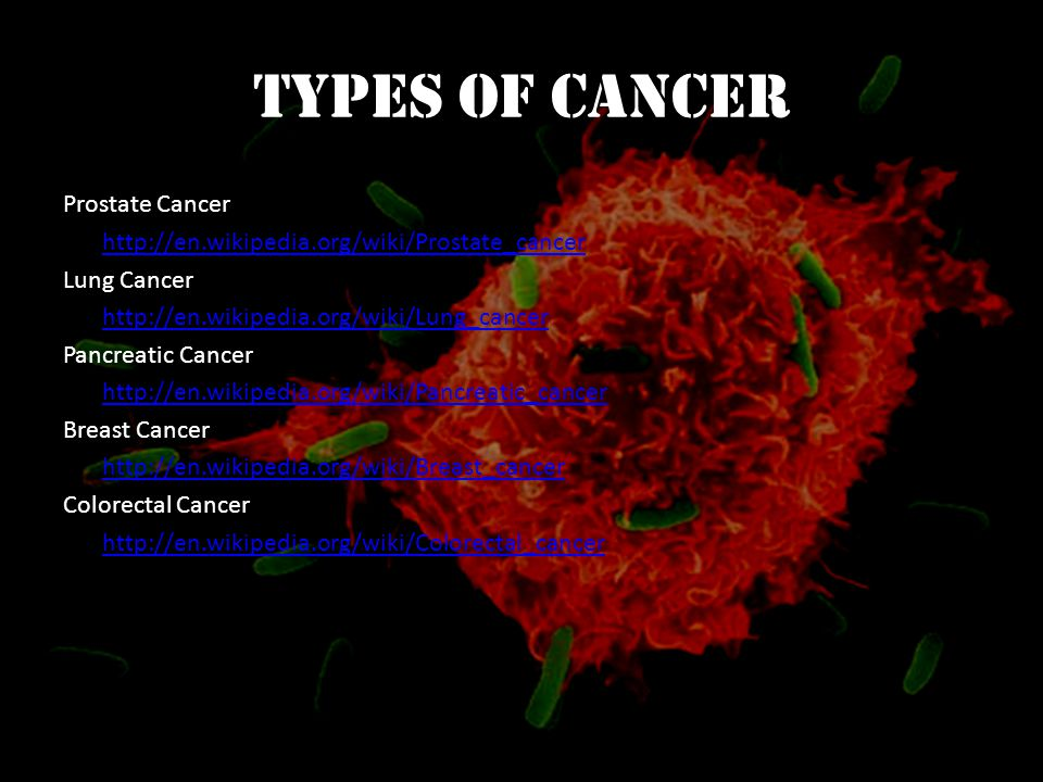 Types of Cancer Prostate Cancer http://en.wikipedia.org/wiki/Prostate_cancer Lung Cancer http://en.wikipedia.org/wiki/Lung_cancer Pancreatic Cancer http://en.wikipedia.org/wiki/Pancreatic_cancer Breast Cancer http://en.wikipedia.org/wiki/Breast_cancer Colorectal Cancer http://en.wikipedia.org/wiki/Colorectal_cancer