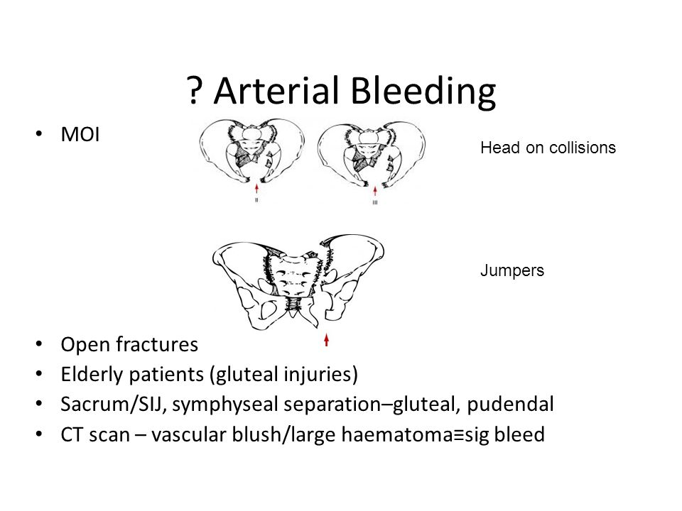 ? Arterial Bleeding MOI Open fractures Elderly patients (gluteal injuries) Sacrum/SIJ, symphyseal separation–gluteal, pudendal CT scan – vascular blus