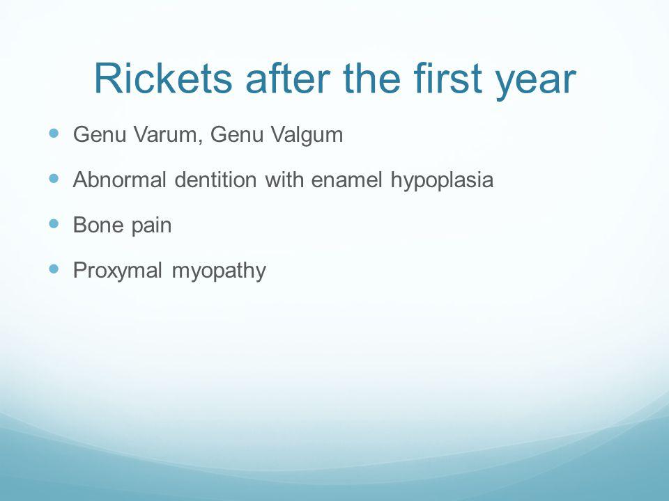 Rickets after the first year Genu Varum, Genu Valgum Abnormal dentition with enamel hypoplasia Bone pain Proxymal myopathy