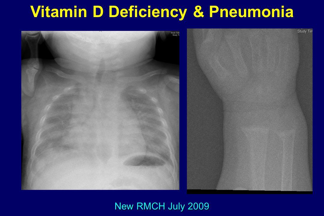 Vitamin D Deficiency & Pneumonia New RMCH July 2009