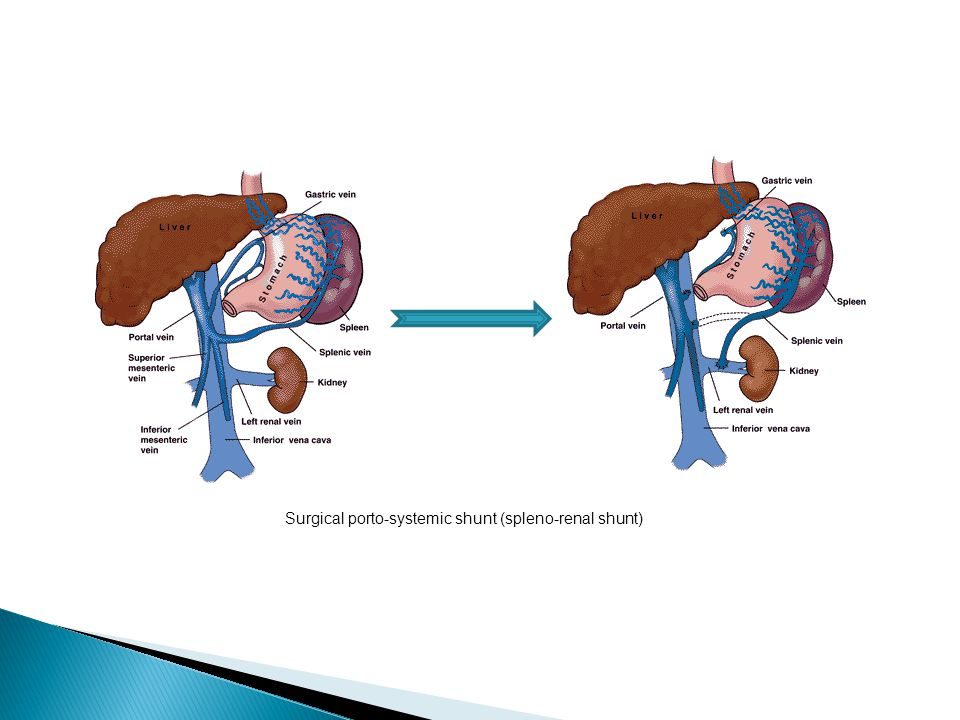 Surgical porto-systemic shunt (spleno-renal shunt)