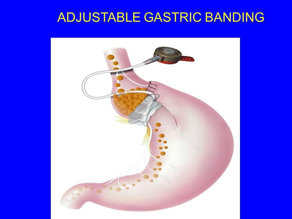ADJUSTABLE GASTRIC BANDING
