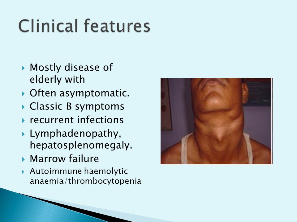 Mostly disease of elderly with  Often asymptomatic.  Classic B symptoms  recurrent infections  Lymphadenopathy, hepatosplenomegaly.  Marrow fai