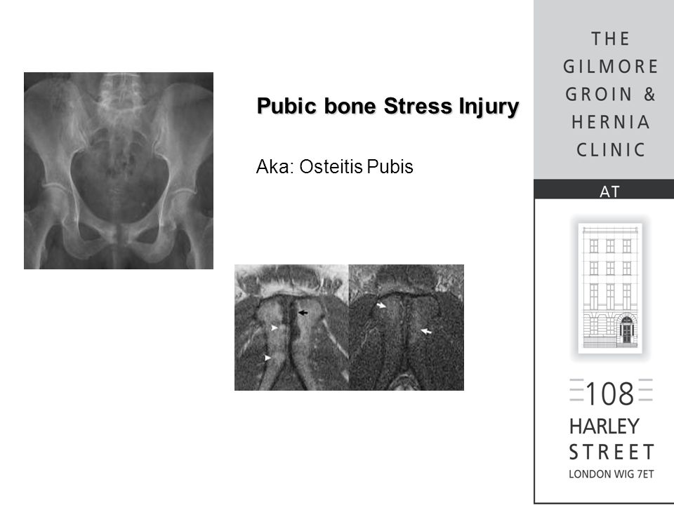 Pubic bone Stress Injury Aka: Osteitis Pubis