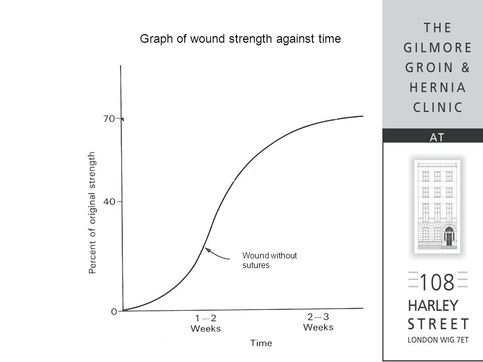 Wound without sutures Graph of wound strength against time