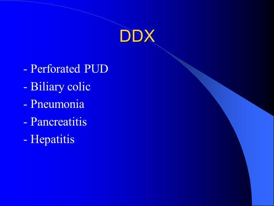 DDX - Perforated PUD - Biliary colic - Pneumonia - Pancreatitis - Hepatitis