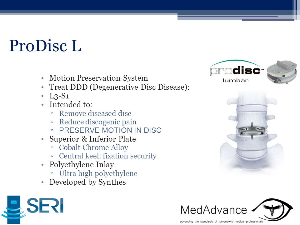 ProDisc L Motion Preservation System Treat DDD (Degenerative Disc Disease): L3-S1 Intended to: ▫Remove diseased disc ▫Reduce discogenic pain ▫ PRESERVE MOTION IN DISC Superior & Inferior Plate ▫Cobalt Chrome Alloy ▫Central keel: fixation security Polyethylene Inlay ▫Ultra high polyethylene Developed by Synthes