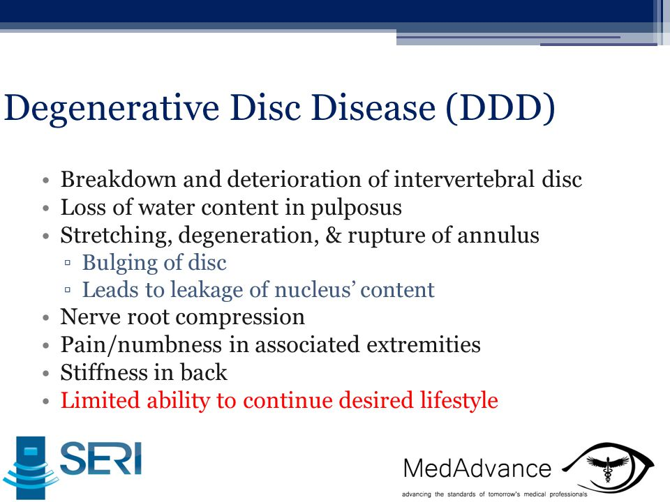 Degenerative Disc Disease (DDD) Breakdown and deterioration of intervertebral disc Loss of water content in pulposus Stretching, degeneration, & rupture of annulus ▫Bulging of disc ▫Leads to leakage of nucleus' content Nerve root compression Pain/numbness in associated extremities Stiffness in back Limited ability to continue desired lifestyle