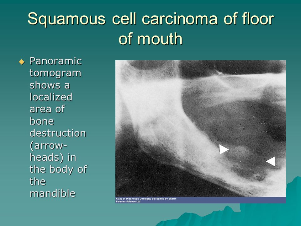 Squamous cell carcinoma of floor of mouth  Panoramic tomogram shows a localized area of bone destruction (arrow- heads) in the body of the mandible