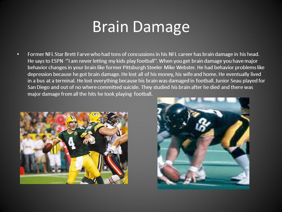 Brain Damage Former NFL Star Brett Farve who had tons of concussions in his NFL career has brain damage in his head.