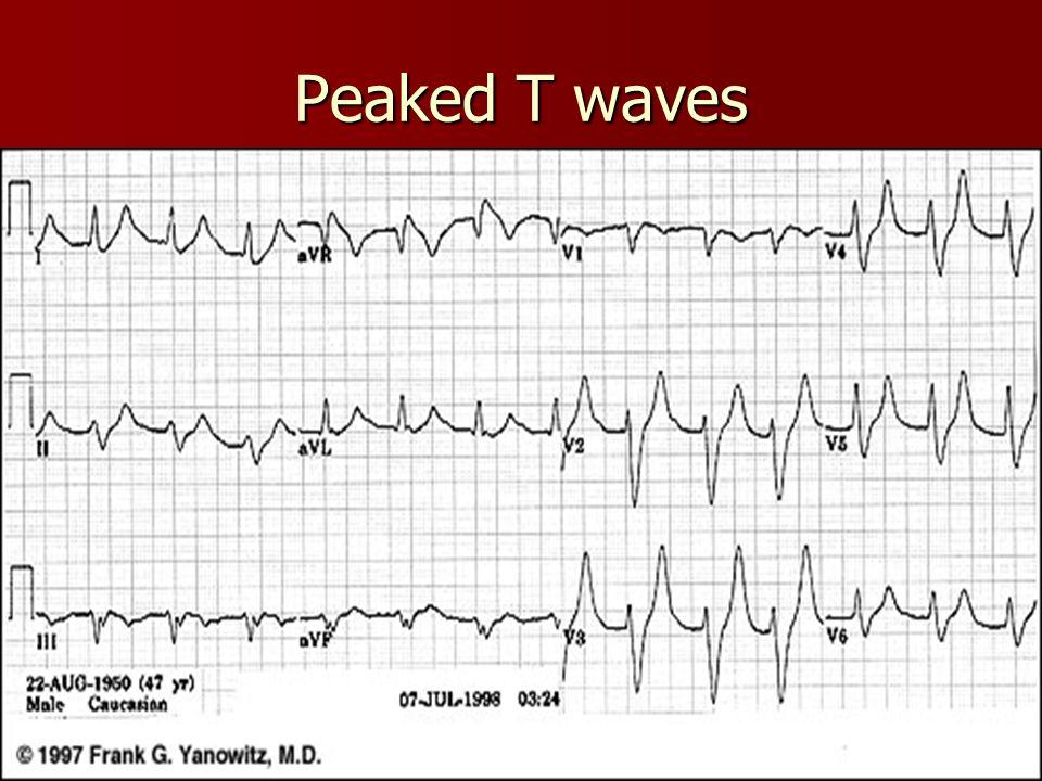 Peaked T waves