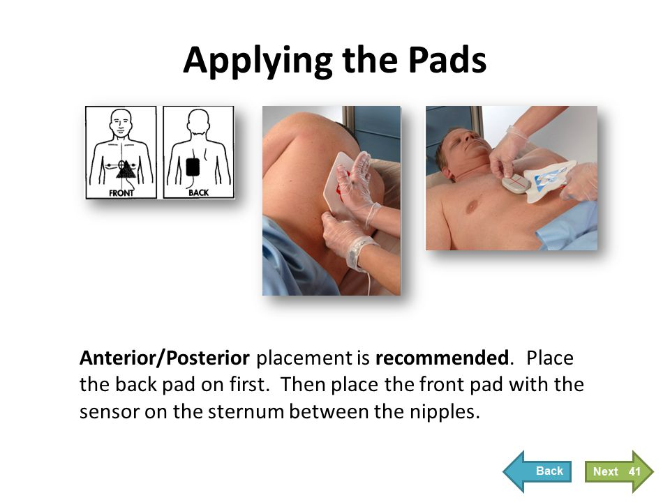 Applying the Pads Anterior/Posterior placement is recommended. Place the back pad on first. Then place the front pad with the sensor on the sternum be