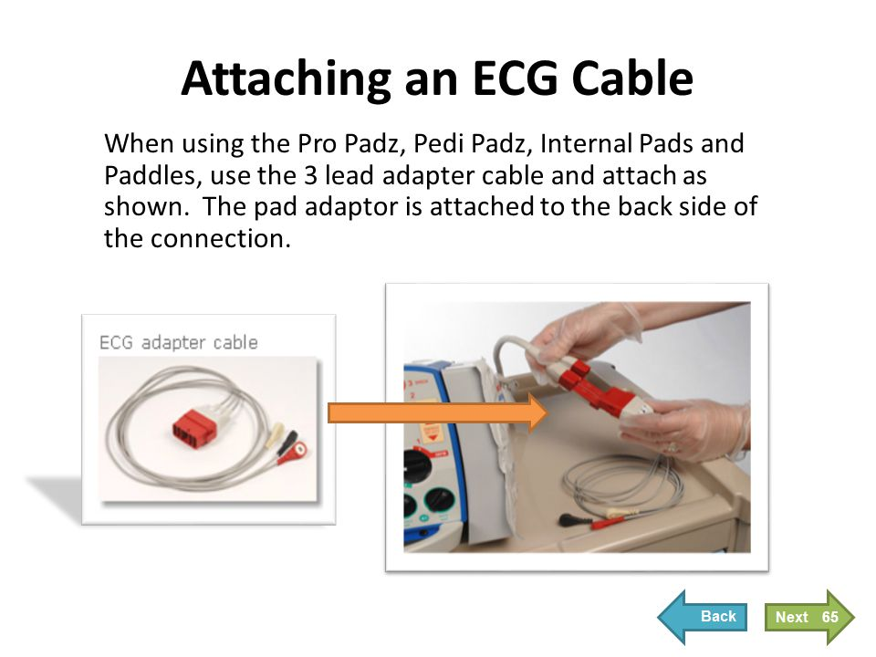 When using the Pro Padz, Pedi Padz, Internal Pads and Paddles, use the 3 lead adapter cable and attach as shown. The pad adaptor is attached to the ba
