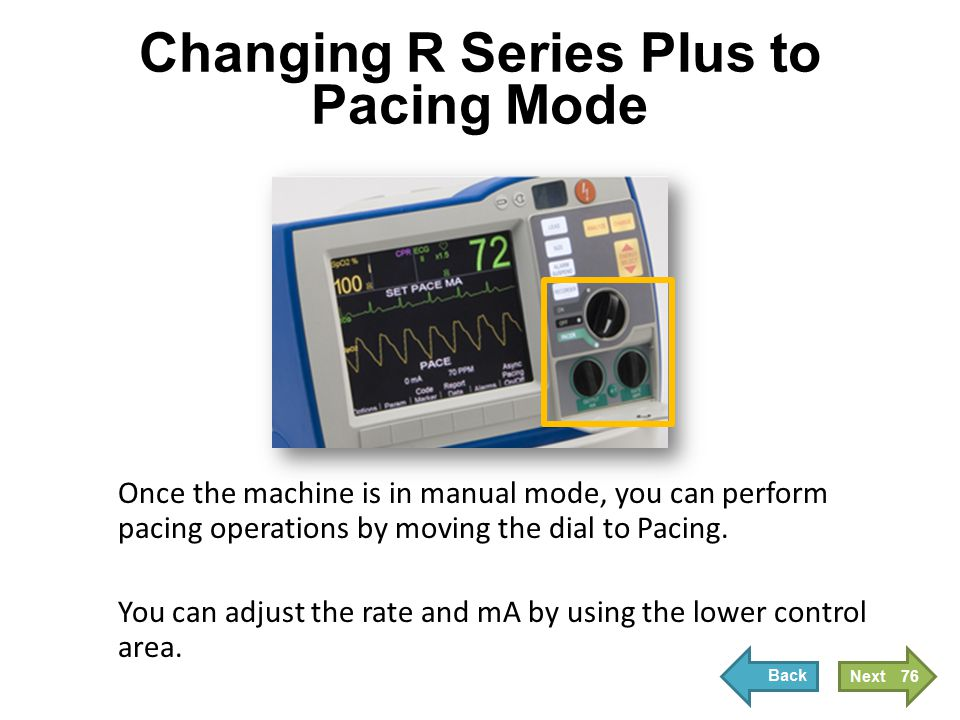 Changing R Series Plus to Pacing Mode Once the machine is in manual mode, you can perform pacing operations by moving the dial to Pacing. You can adju