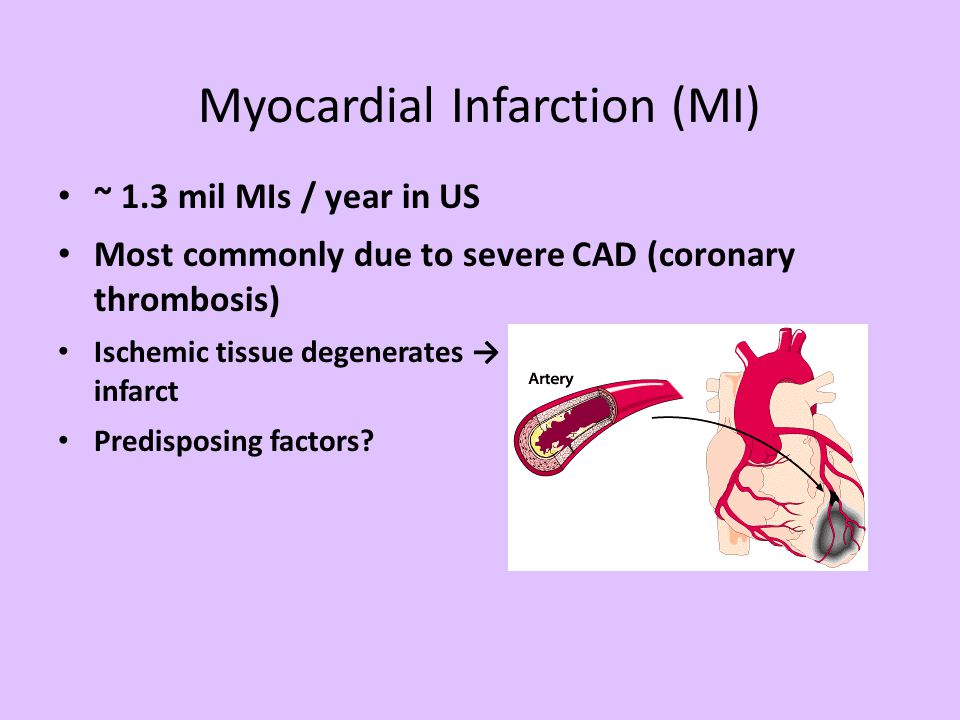 Myocardial Infarction (MI) ~ 1.3 mil MIs / year in US Most commonly due to severe CAD (coronary thrombosis) Ischemic tissue degenerates → nonfunctiona