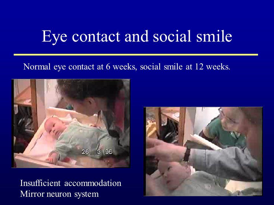 Eye contact and social smile Normal eye contact at 6 weeks, social smile at 12 weeks. Insufficient accommodation Mirror neuron system