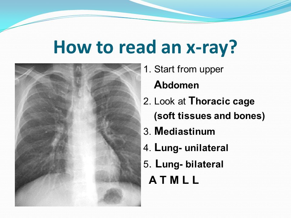 How to read an x-ray? 1. Start from upper A bdomen 2. Look at T horacic cage (soft tissues and bones) 3. M ediastinum 4. L ung- unilateral 5. L ung- b