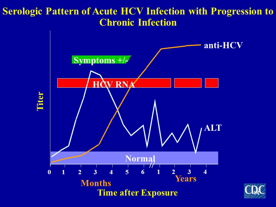 Serologic Pattern of Acute HCV Infection with Progression to Chronic Infection Symptoms +/- Time after Exposure Titer anti-HCV ALT Normal 012345 61234