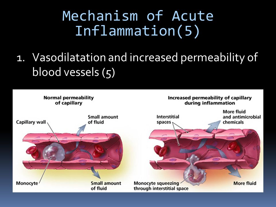 Mechanism of Acute Inflammation(5) 1.Vasodilatation and increased permeability of blood vessels (5)
