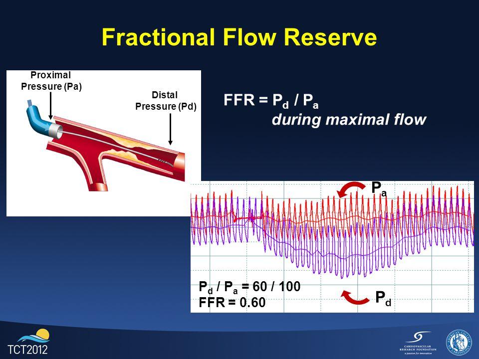 Fractional Flow Reserve Distal Pressure (Pd) Proximal Pressure (Pa) FFR = P d / P a during maximal flow PdPd PaPa P d / P a = 60 / 100 FFR = 0.60