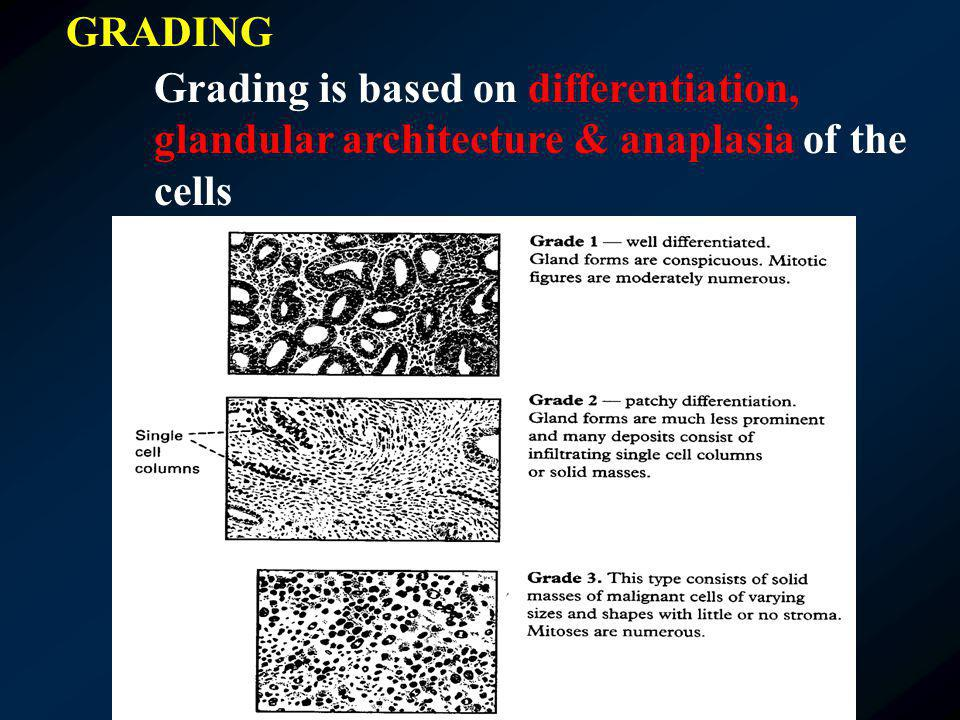 GRADING Grading is based on differentiation, glandular architecture & anaplasia of the cells