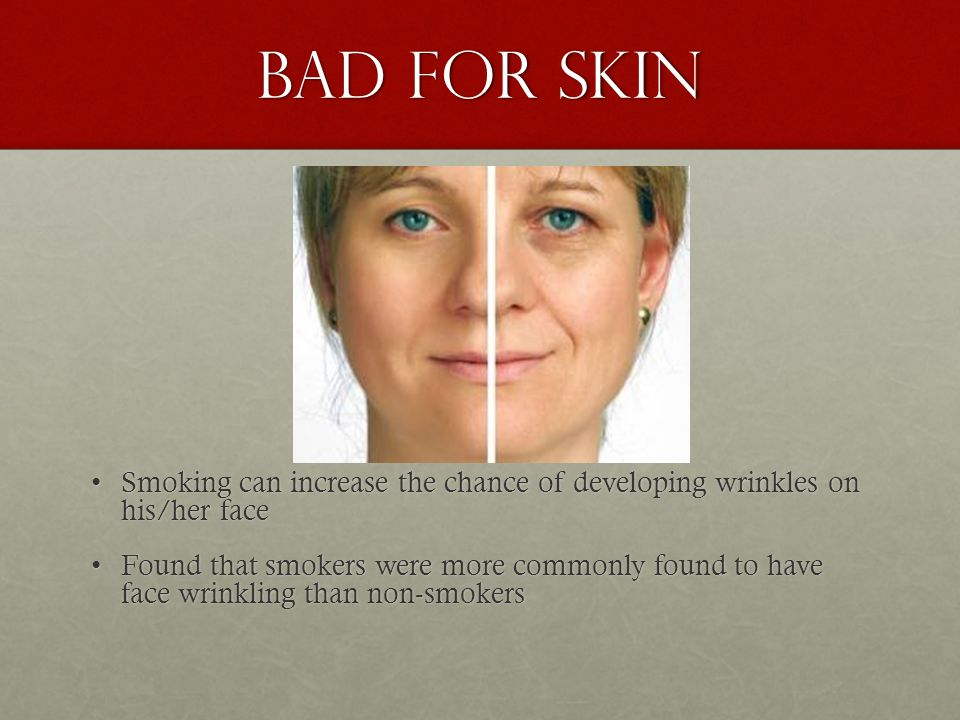 Bad for skin Smoking can increase the chance of developing wrinkles on his/her faceSmoking can increase the chance of developing wrinkles on his/her face Found that smokers were more commonly found to have face wrinkling than non-smokersFound that smokers were more commonly found to have face wrinkling than non-smokers