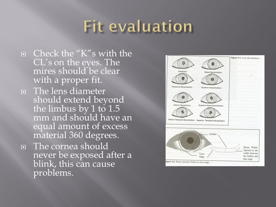 """ Check the """"K""""s with the CL's on the eyes. The mires should be clear with a proper fit.  The lens diameter should extend beyond the limbus by 1 to 1"""
