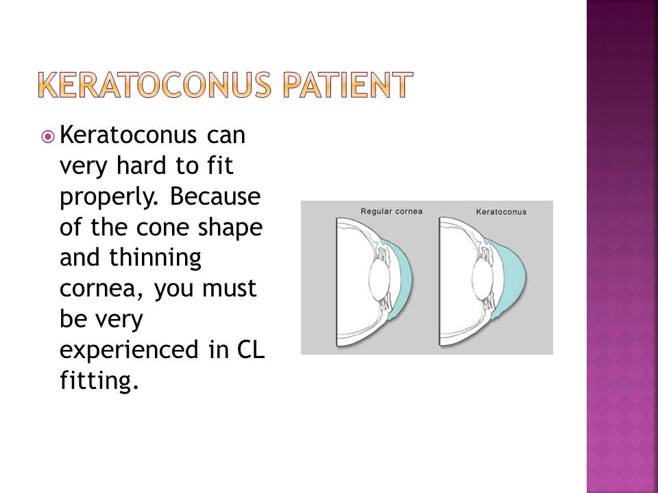  Keratoconus can very hard to fit properly. Because of the cone shape and thinning cornea, you must be very experienced in CL fitting.