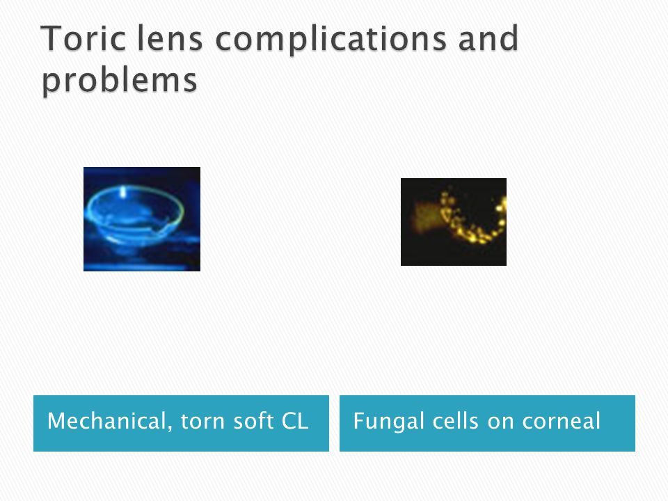 Mechanical, torn soft CLFungal cells on corneal