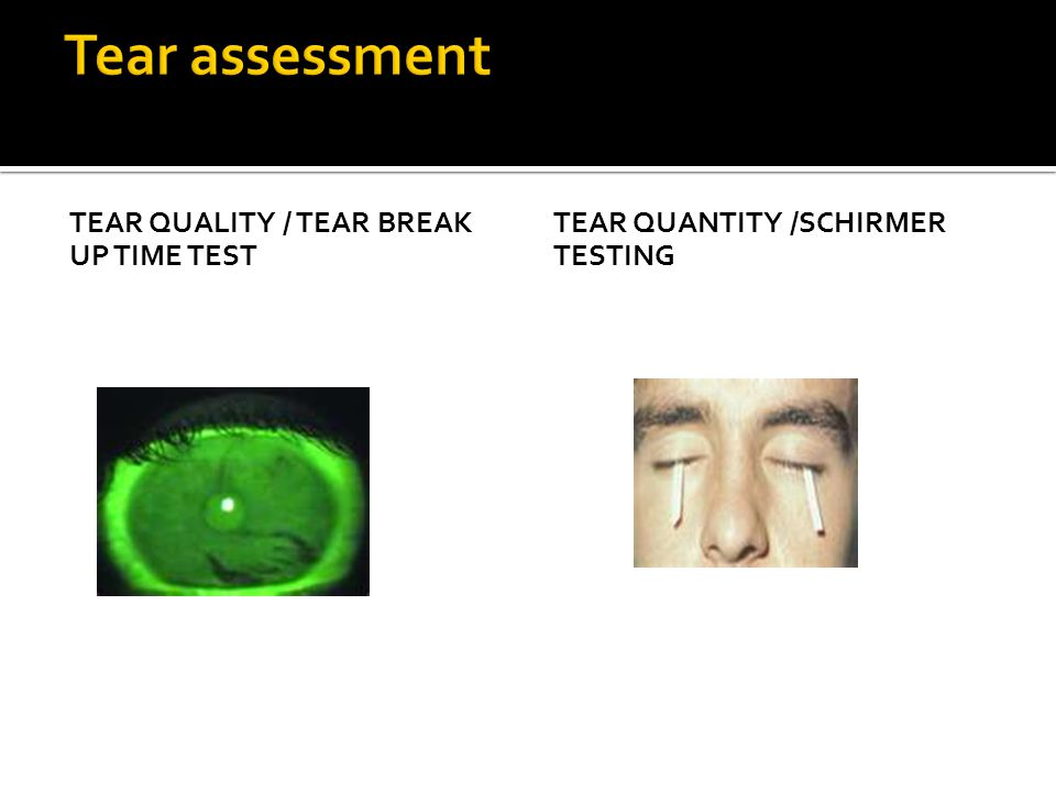 TEAR QUALITY / TEAR BREAK UP TIME TEST TEAR QUANTITY /SCHIRMER TESTING