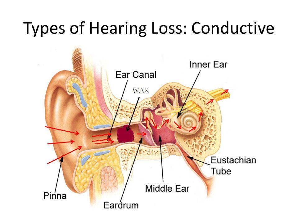 Types of Hearing Loss: Conductive