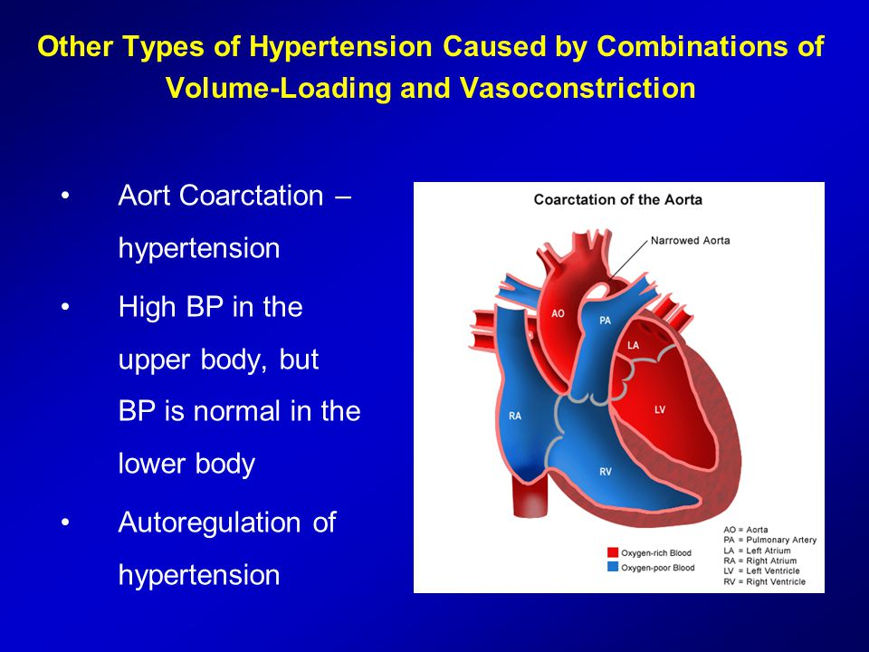 Other Types of Hypertension Caused by Combinations of Volume-Loading and Vasoconstriction Aort Coarctation – hypertension High BP in the upper body, b