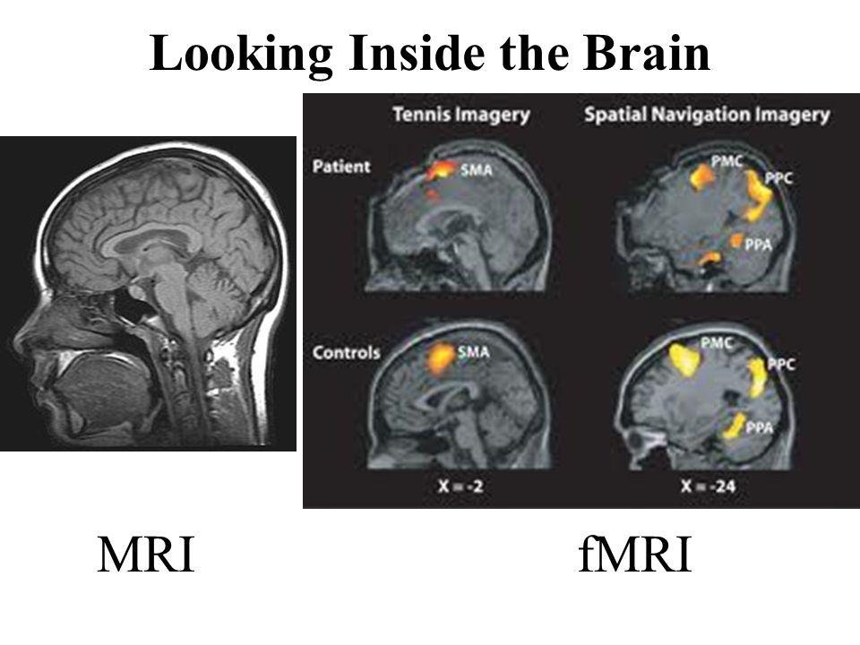 MRI fMRI Looking Inside the Brain