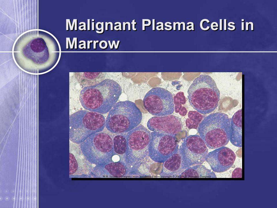 Malignant Plasma Cells in Marrow