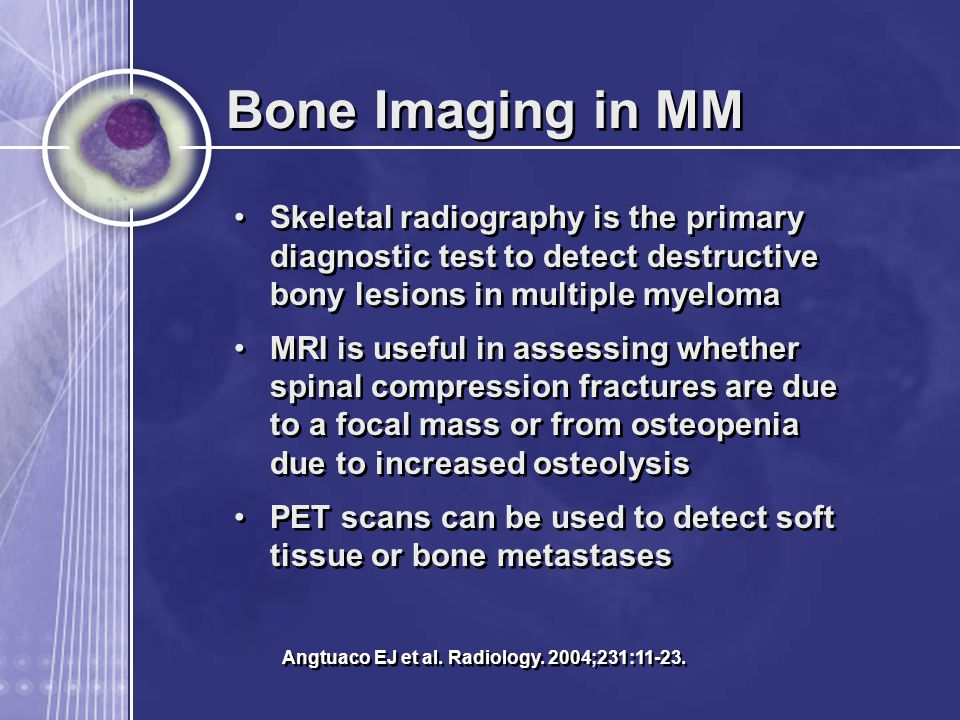 Bone Imaging in MM Skeletal radiography is the primary diagnostic test to detect destructive bony lesions in multiple myeloma MRI is useful in assessing whether spinal compression fractures are due to a focal mass or from osteopenia due to increased osteolysis PET scans can be used to detect soft tissue or bone metastases Skeletal radiography is the primary diagnostic test to detect destructive bony lesions in multiple myeloma MRI is useful in assessing whether spinal compression fractures are due to a focal mass or from osteopenia due to increased osteolysis PET scans can be used to detect soft tissue or bone metastases Angtuaco EJ et al.