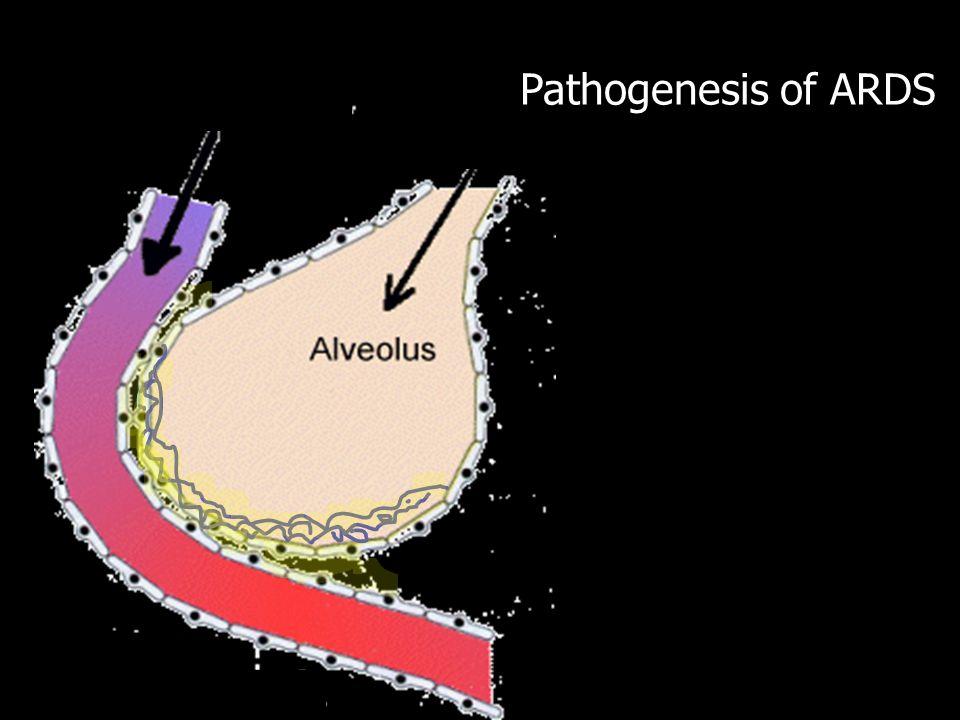 Pathogenesis of ARDS