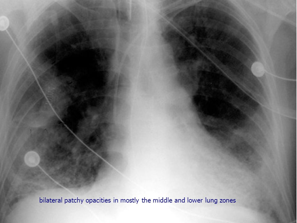 bilateral patchy opacities in mostly the middle and lower lung zones