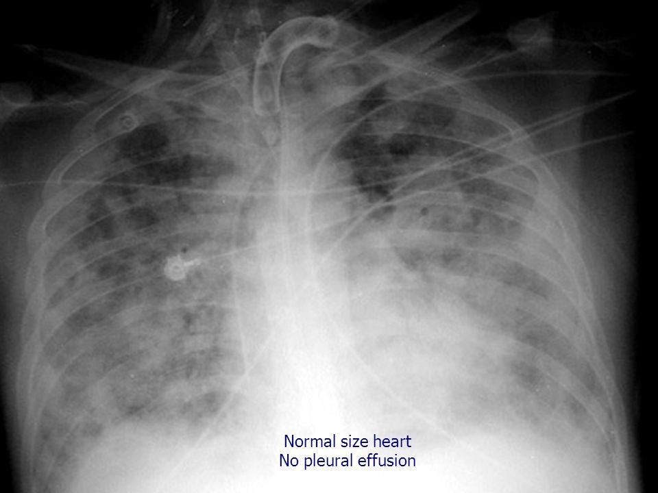 Normal size heart No pleural effusion