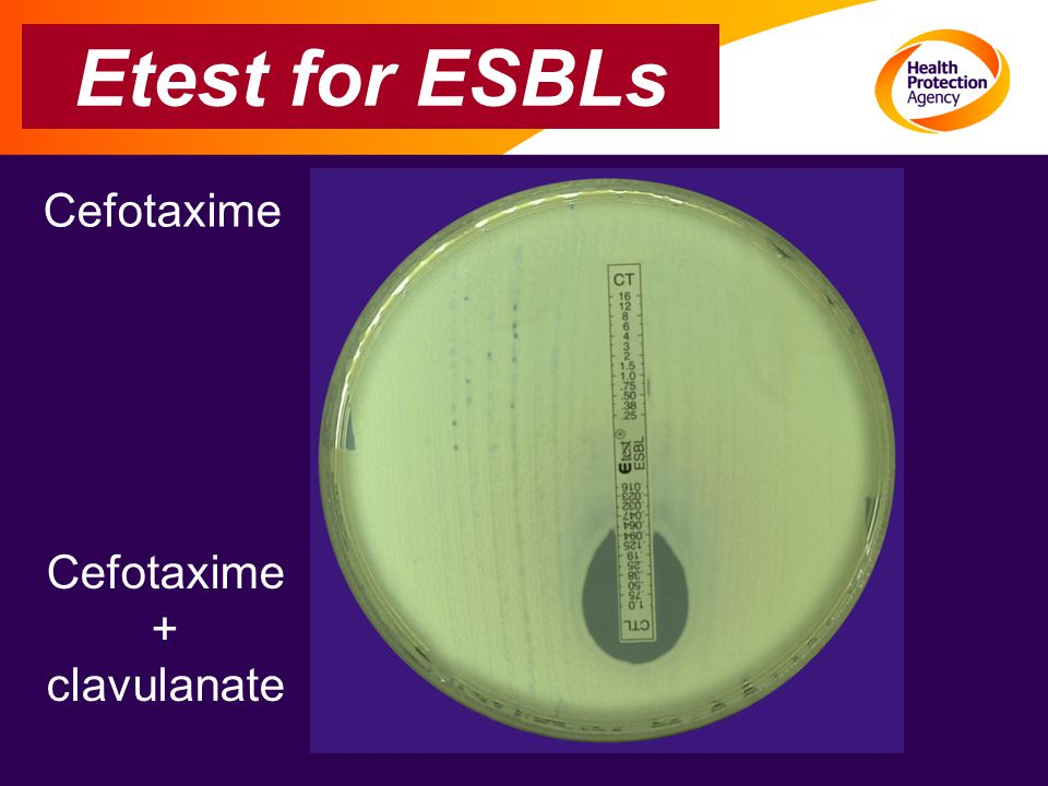 Etest for ESBLs Cefotaxime + clavulanate