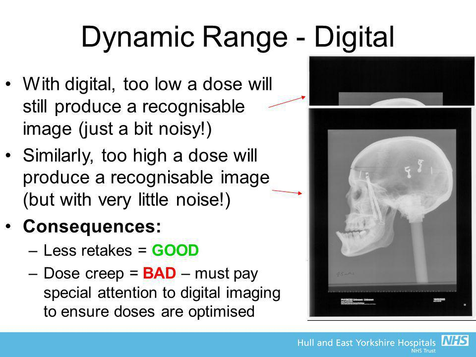Dynamic Range - Digital With digital, too low a dose will still produce a recognisable image (just a bit noisy!) Similarly, too high a dose will produ